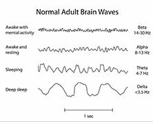 Neurofeedback Online Training